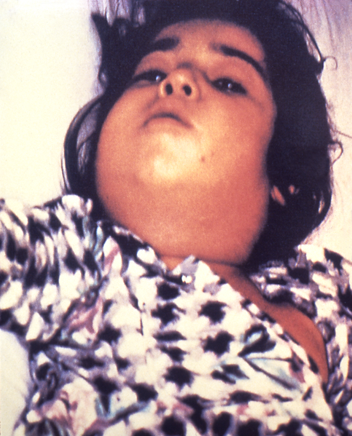 "1995 Dr.?? This child with diphtheria presented with a characteristic swollen neck, sometimes referred to as ""bull neck"". Diphtheria is an acute bacterial disease involving primarily the tonsils, pharynx, larynx, nose, skin, and at times other mucous membranes. The mucosal lesion is marked by a patch or patches of an adherent grayish membrane with a surrounding inflammation."