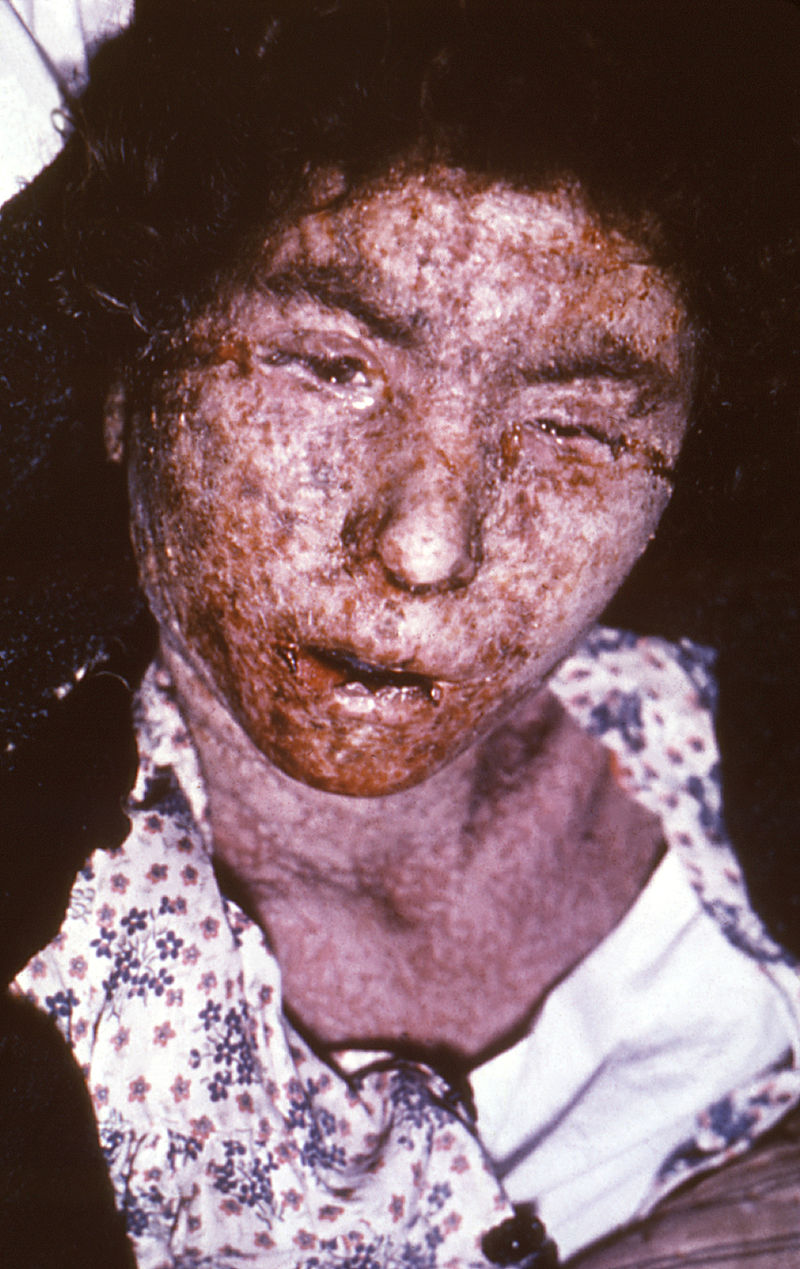 Female_smallpox_patient_--_late-stage_confluent_maculopapular_scarring