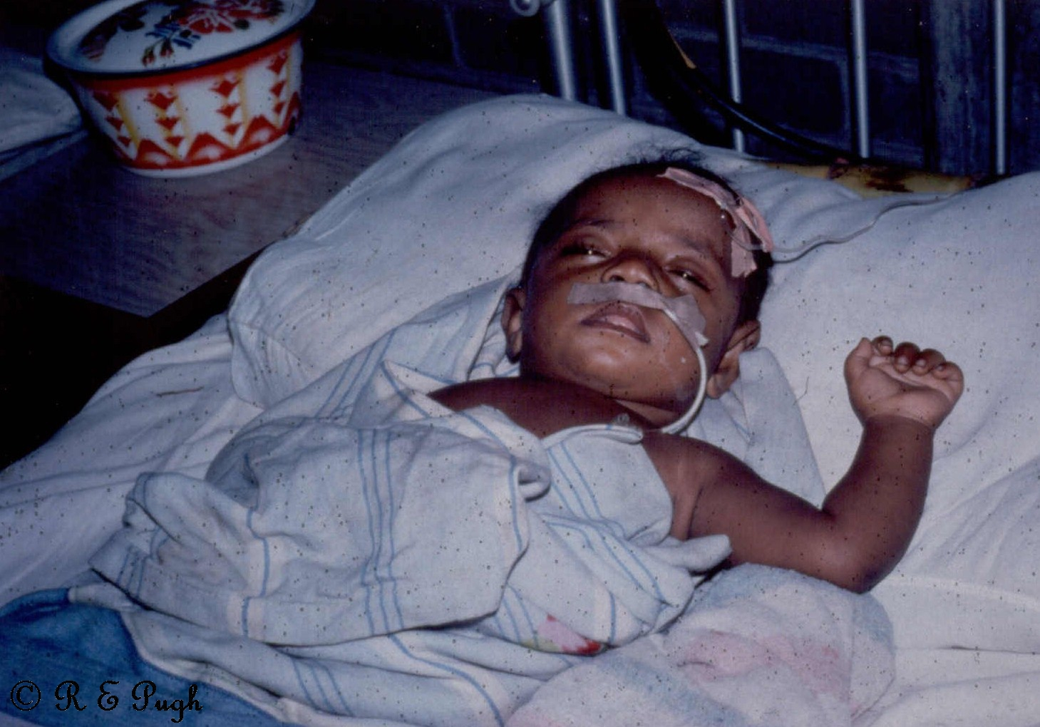 Child infected with Haemophilus influenzae in PNG.